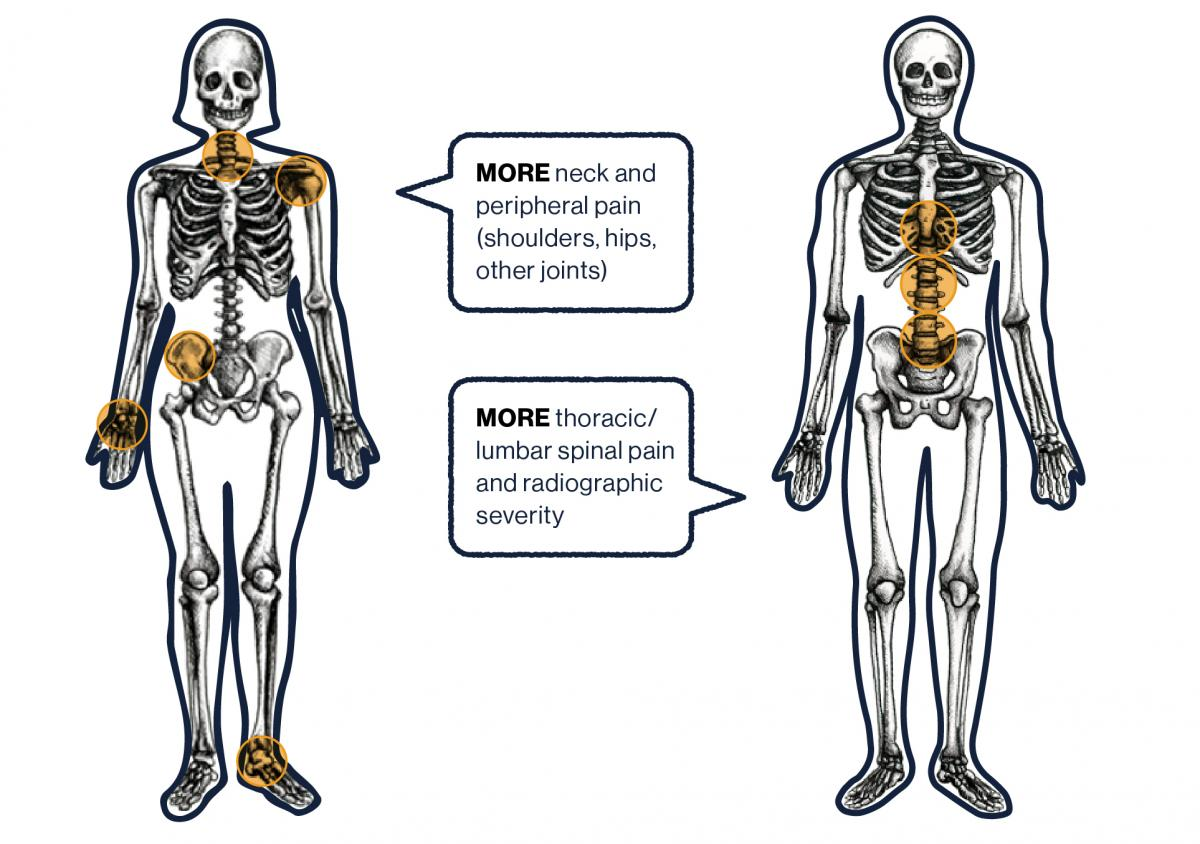 Image of female and male skeletons, labelled with pain points